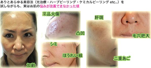 ありとあらゆる美容法(光治療・ハーブヒーリング・ケミカルピーリング etc...)を試しながらも、実はお肌の悩みが改善できなかった頃
